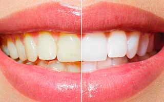 Внутриканальное отбеливание зубов: как проводится и основы технологии